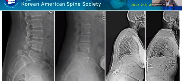 How to Avoid Creating Deformity as Spine Surgeons