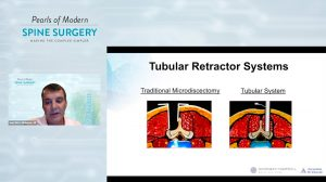 How to Reduce Frustration in MIS Spine Surgery