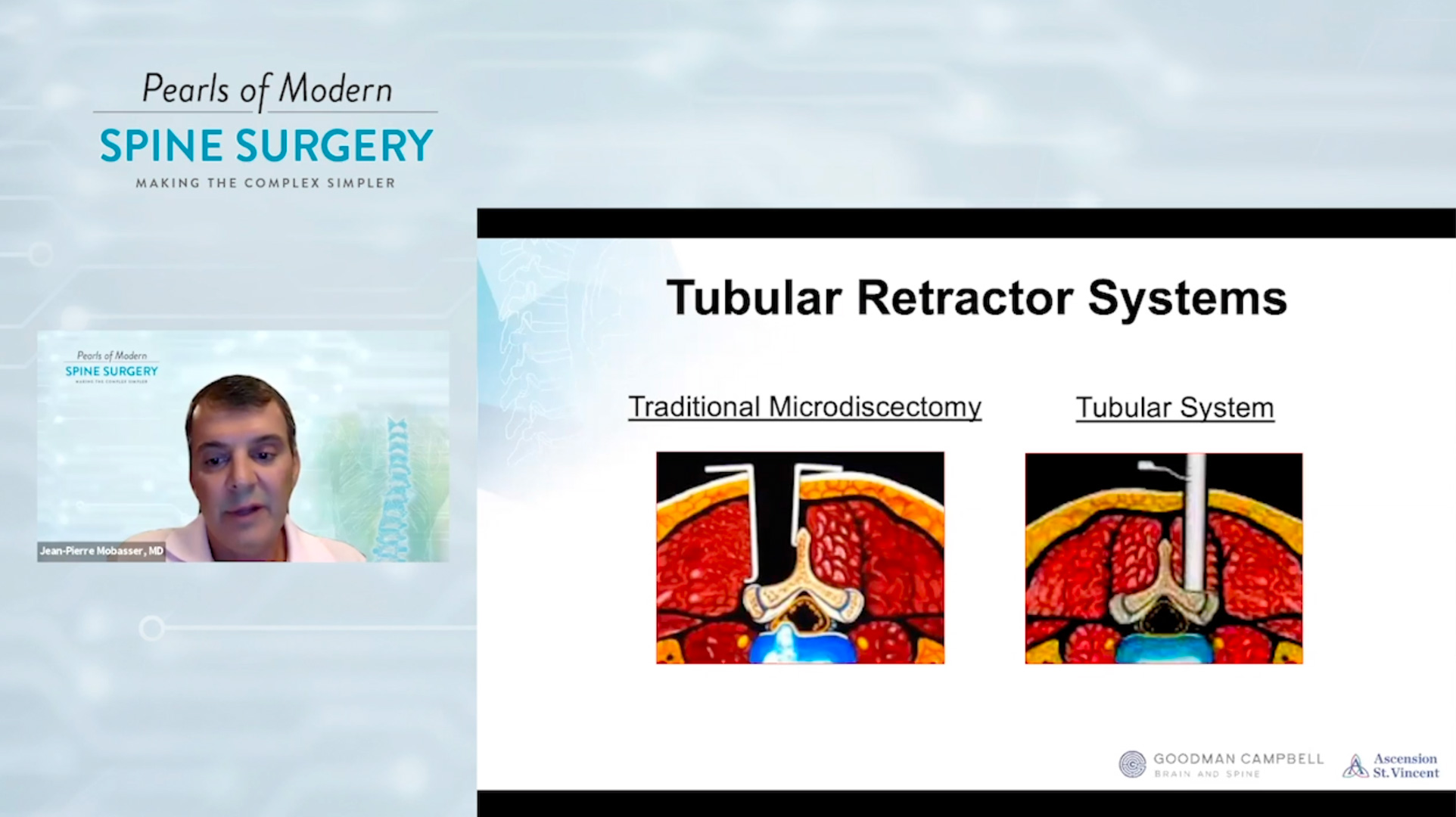Mobasser, MD - How to Reduce Frustration - MIS Spine Surgery