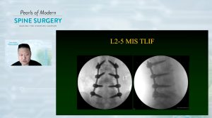 Combinational Technologies to Achieve Ultra-MIS Spine Surgery