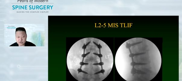 Michael Yang, MD - Ultra-MIS Spine Surgery